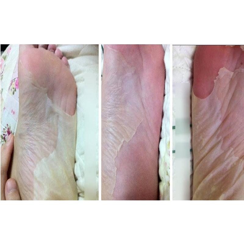 [해외]8pair efero 베이비 풋 필링 엑스 폴리 에이 팅 발 마스크 발 마스크 데드 스킨 큐티클 제거 발 뒤꿈치 풋 케어 페디큐어 양말 화이트닝/8pair efero Baby Foot Peeling Exfoliating Foot Mask Feet Mask Rem